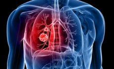 癌症诱因| 关于肺癌的10大误区