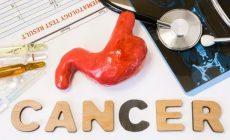 胃癌是什么?胃癌知识点集锦,带您全面认识胃癌