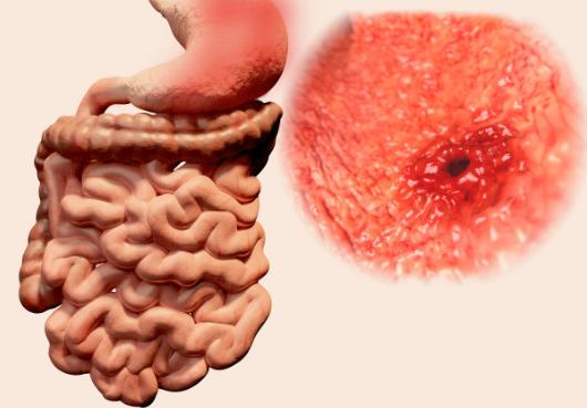 胃癌早期有什么症状
